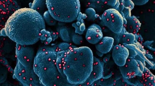 'Koronavirüs'ler bu hücreleri görünce adeta 'tası tarağı toplayıp' koşa koşa kaçıyor'